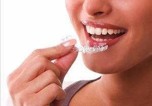 Исправление прикуса и выравнивание зубов