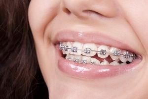 Брекеты - ортодонтическое лечение