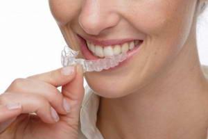 Съемные конструкции в ортодонтии