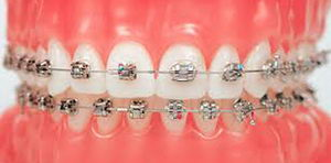 Брекет-система Даймон – новое слово в ортодонтии