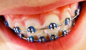 Исправление зубов с помощью брекетов