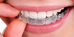 Капы для исправления прикуса и выравнивания зубов
