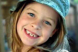 Неправильный прикус у детей: симптомы и лечение