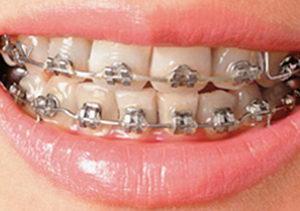 Ортодонтическое лечение зубов брекетами