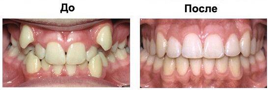 До и после лечения зубов брекетами