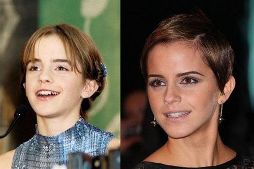 Эмма Уотсон до и после брекетов