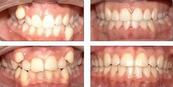 Зубы до и после брекетов