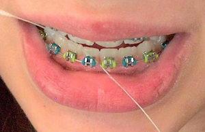 Как пользоваться зубной нитью для чистки брекетов правильно