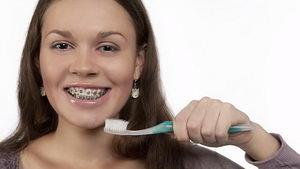 Как правильно чистить брекеты? Поэтапная инструкция
