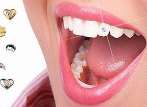 Косметическая стоматология – залог безупречной улыбки