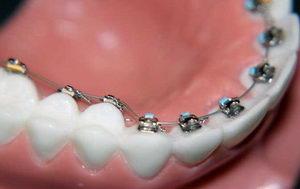 На сколько ставят внутренние брекеты на зубы