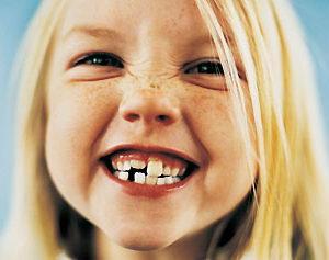 Причины формирования неправильного прикуса у детей