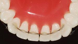 Несъемные приспособления на зубы после брекетов