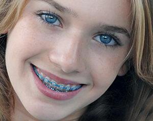 Ортодонтическое лечение несъемными аппаратами