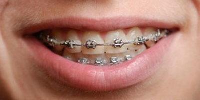 Ортодонтия - брекеты