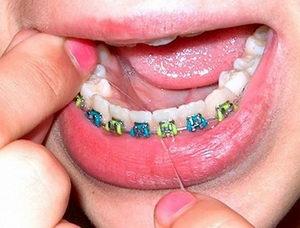 Особенности правильного пользования зубной нитью для чистки брекетов