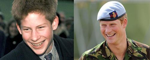 Принц Гарри - фото брекеты до и после