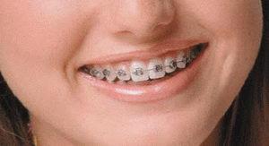 Установка несъемных брекет-систем в ортодонтической стоматологии