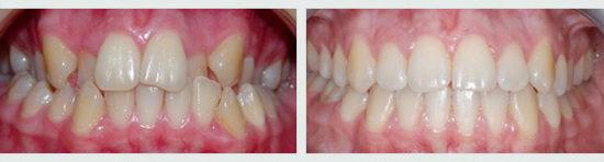 Фото - зубы после брекетов