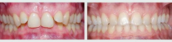 Зубы до и после брекетов - фото