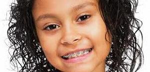 Зубы до и после брекетов у детей