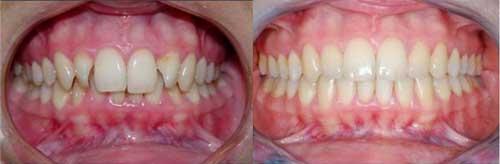Фото до и после брекет-системы