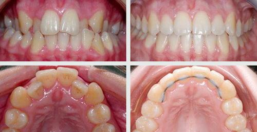 Фото до и после брекетов