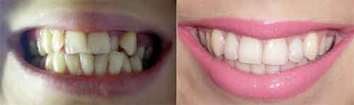 Фотография до и после брекетов