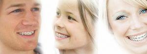 Сколько стоит поставить брекеты на зубы?
