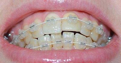 Сколько стоит поставить керамические брекеты на зубы
