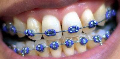 Сколько стоят металлические брекеты на зубы