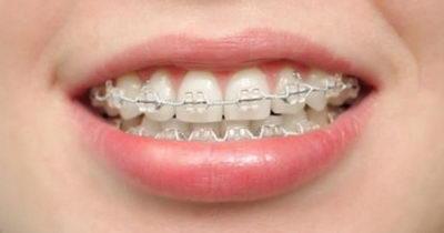 Сколько стоит поставить сапфировые брекеты на зубы
