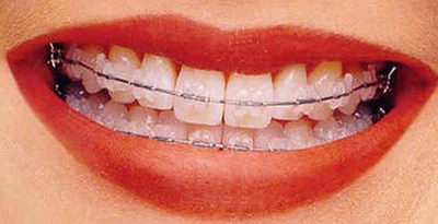 Несъемные системы в ортодонтии