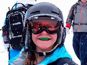 Защитные зубные капы в спорте