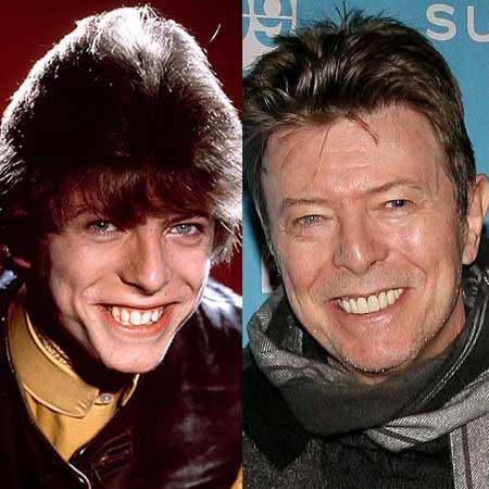 Зубы звезд до и после брекетов - Дэвид Боуи