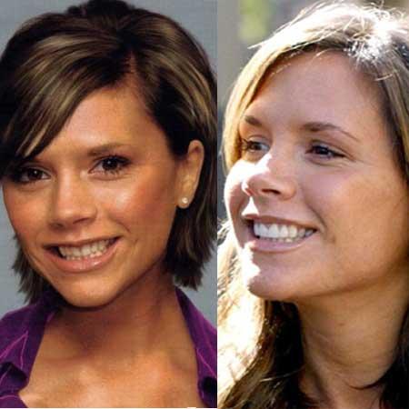 Зубы звезд до и после брекетов - Виктория Бэкхем