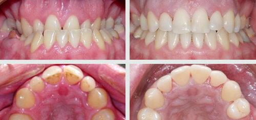 Зубы до и после снятия брекетов
