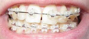На фото установка системы In Ovation на зубы