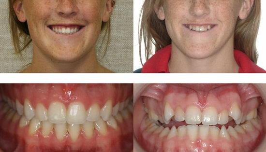 Эстетическая стоматология - брекеты до и после