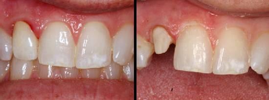 Фото до и после - зубные коронки