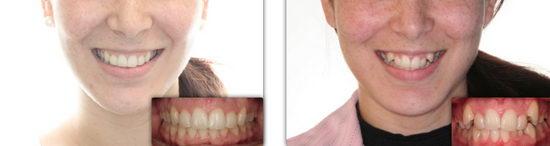 Фото: каппы Invisalign в эстетической стоматологии до и после