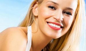 Фото - улыбка девушки с ровными зубами