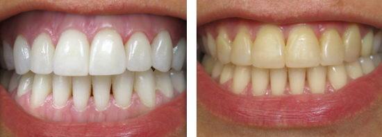 Фотография результата отбеливания зубных рядов