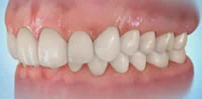 Пример глубокого прикуса зубов