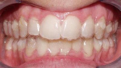 Ношение Invisilagn на зубах