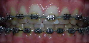 Выравнивание зубов взрослым металлическими брекетами