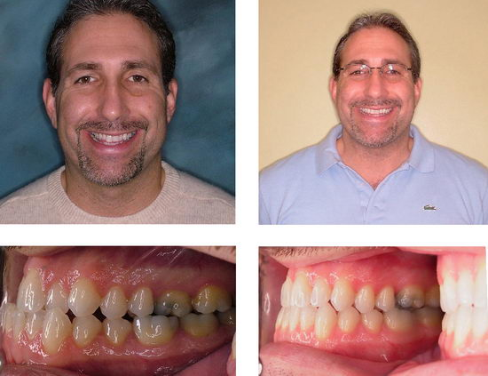 Фото взрослого человека до и после исправления прикуса с помощью брекетов