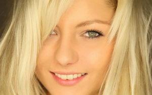 Красивая улыбка девушки после лечения
