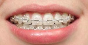 Невидимый ортодонтический аппарат