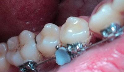 Фото - отвалился брекет с зуба